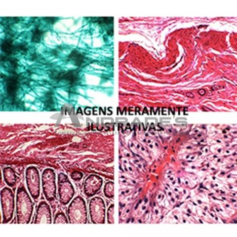 ADENOMA DE GL HEPATÓIDE