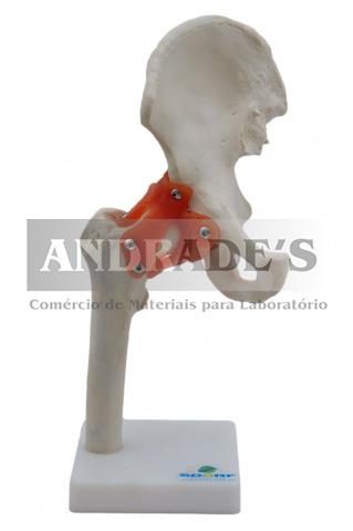 Articulação do quadril - SD-5019