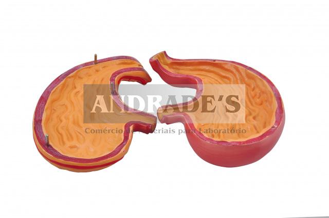 Estômago ampliado em 2 partes - SD-5046