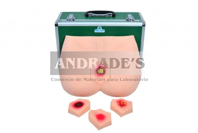 Simulador p/ cuidados da úlcera no decúbito e avaliação da evolução - SD 4020/B