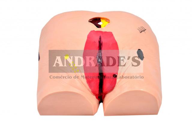 Simulador p/ cuidados da úlcera no decúbito - SD-4020