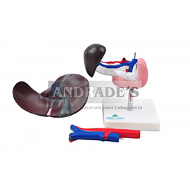Fígado, pâncreas, baço e duodeno - SD-5050