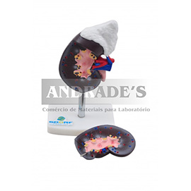 Rim c/ glândula supradrenal em 2 partes - SD-5051