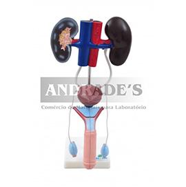 Sistema urinário masculino em 9 partes - SD-5064