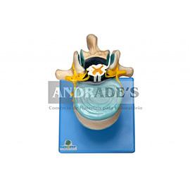 Vértebra lombar c/ cordão espinhal, nervo e cauda equina - SD-5015