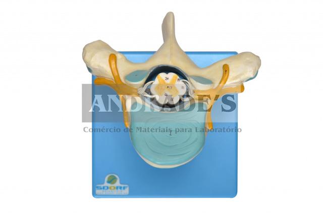 Vértebra torácica c/ cordão espinhal - SD-5014